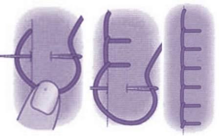 обметочный шов